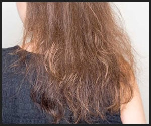 Frizzy fine hair