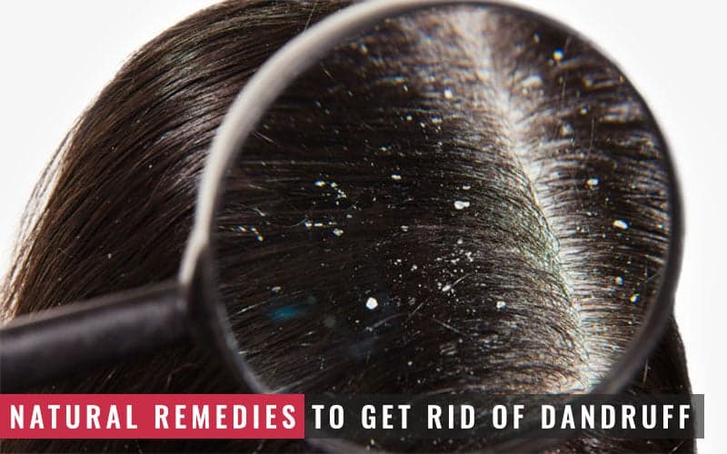Featured Image of Natural Remedies to Get Rid of Dandruff